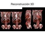 reconstrucci n 3d