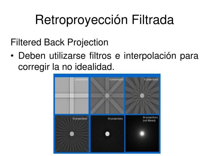Retroproyección Filtrada
