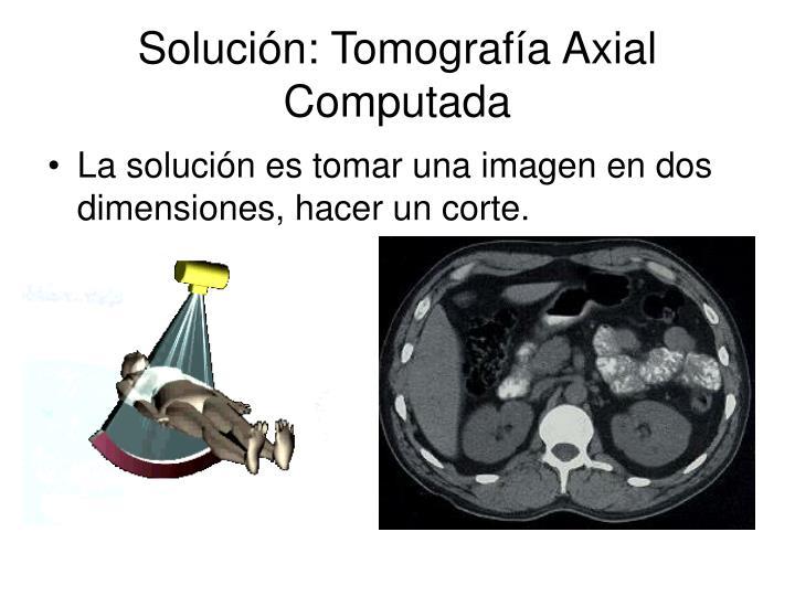 Solución: Tomografía Axial Computada