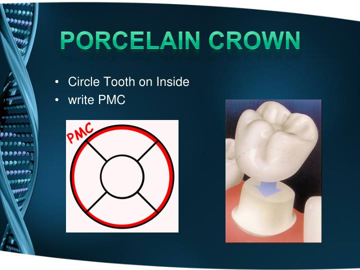 porcelain crown