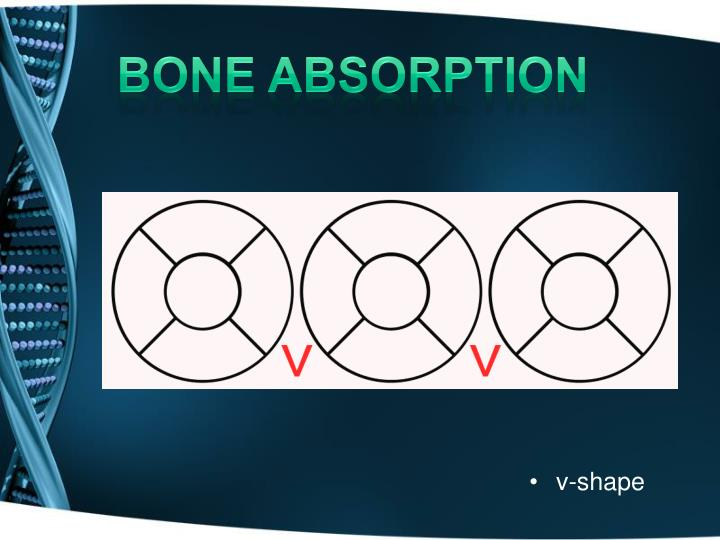 bone absorption
