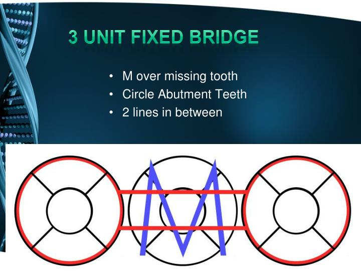 3 unit fixed bridge