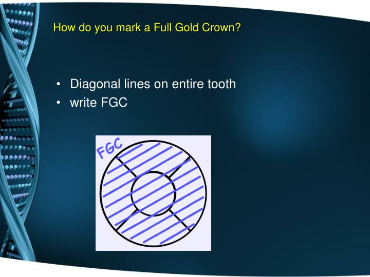 How do you mark a Full Gold Crown?
