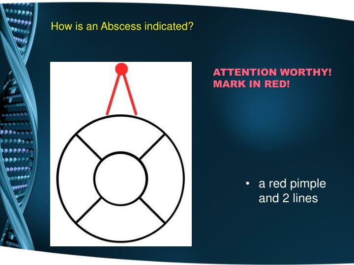 How is an Abscess indicated?