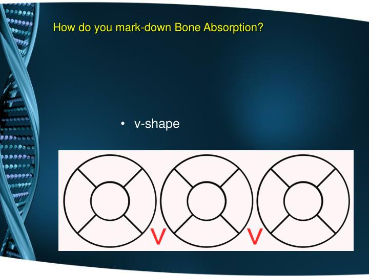 How do you mark-down Bone Absorption?