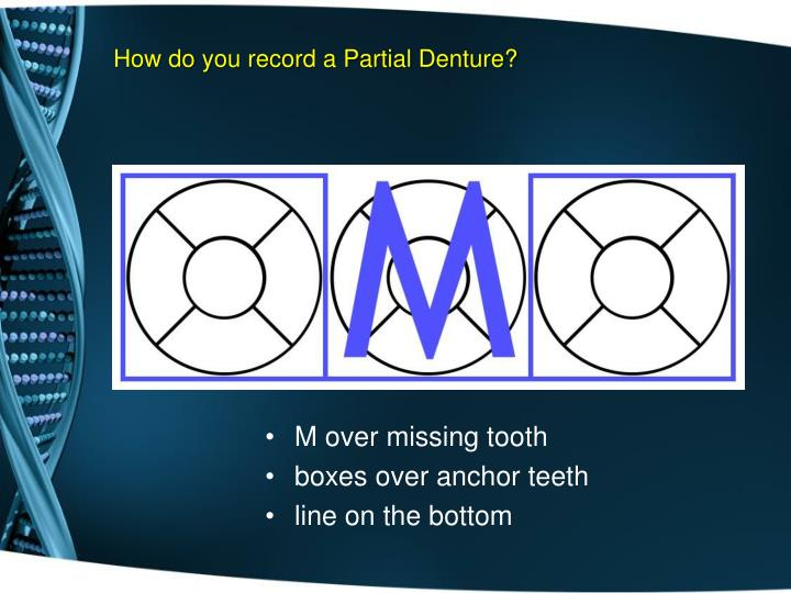 How do you record a Partial Denture?