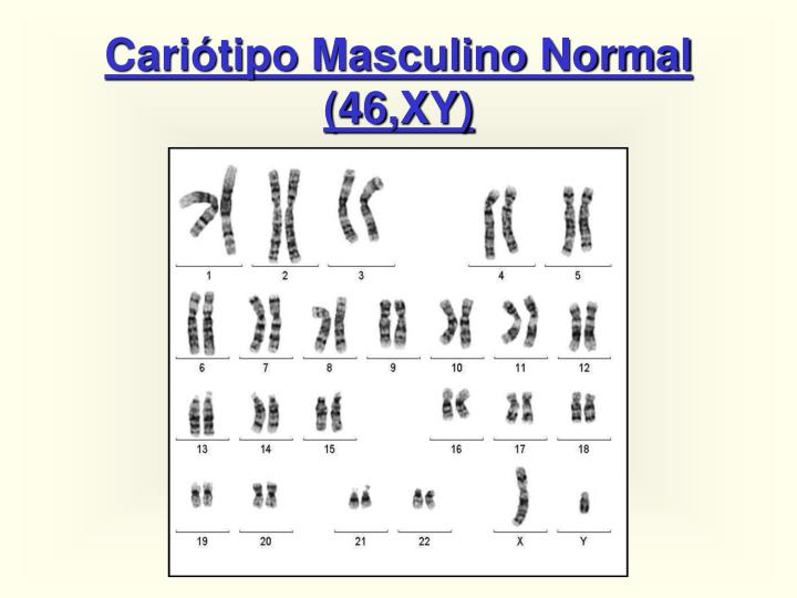 Cariótipo Masculino Normal (46,XY)