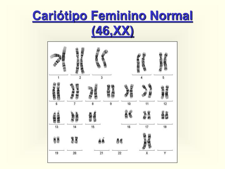 Cariótipo Feminino Normal (46,XX)