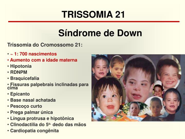 TRISSOMIA 21
