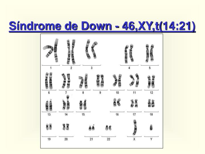 Síndrome de Down - 46,XY,t(14:21)