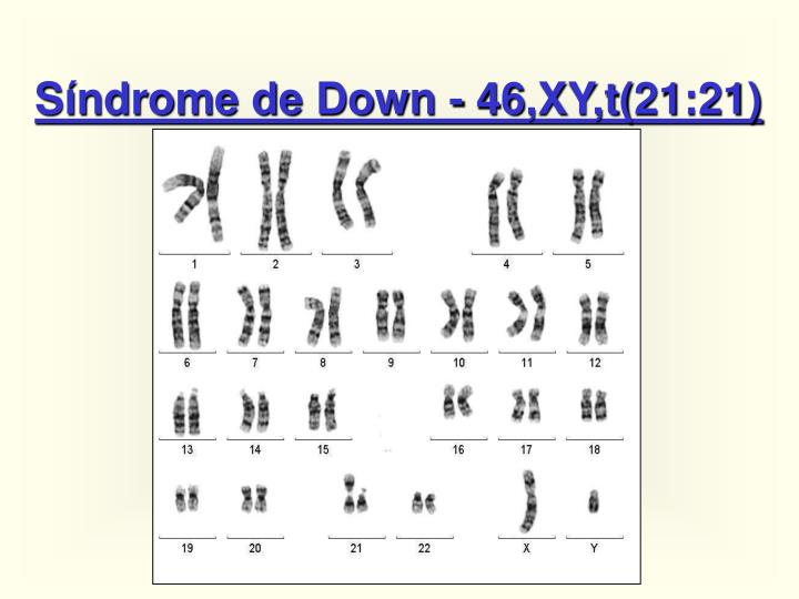 Síndrome de Down - 46,XY,t(21:21)