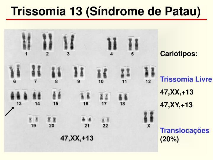 Trissomia 13 (Síndrome de Patau)