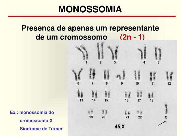 MONOSSOMIA