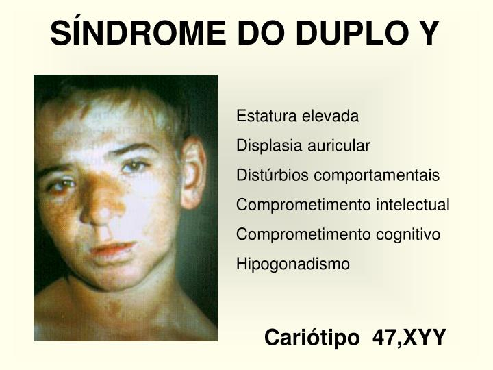 SÍNDROME DO DUPLO Y