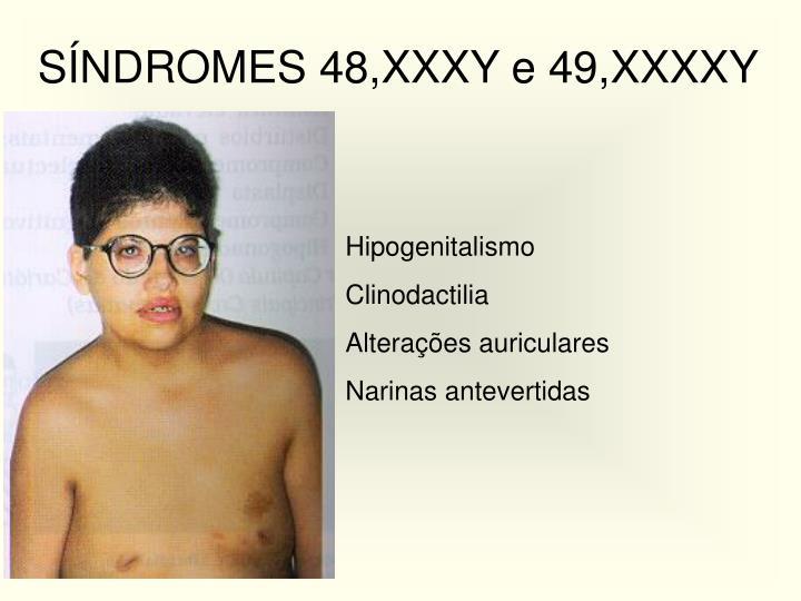 SÍNDROMES 48,XXXY e 49,XXXXY
