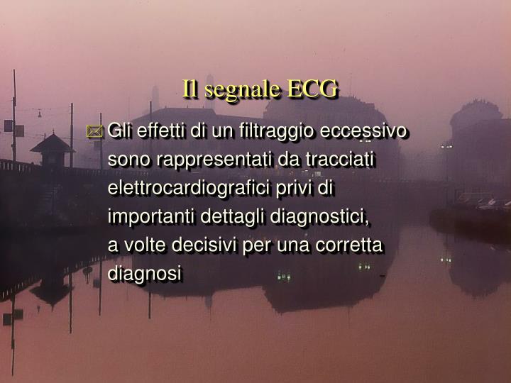 Il segnale ECG