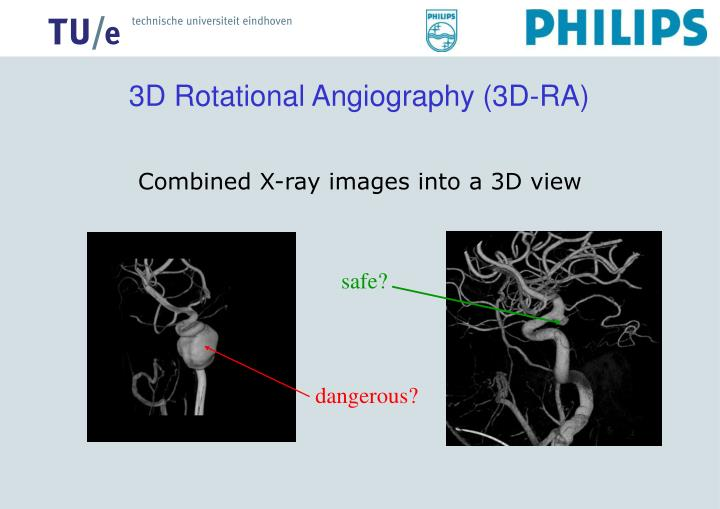 3D Rotational Angiography (3D