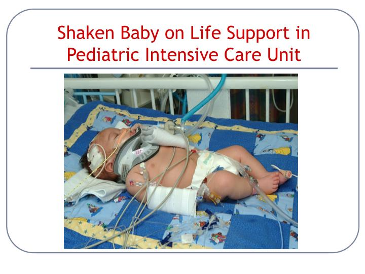 Shaken Baby on Life Support in Pediatric Intensive Care Unit