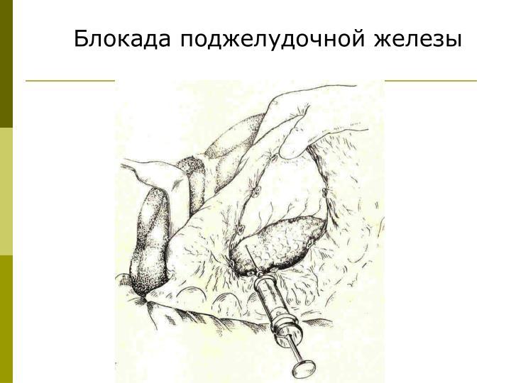 Блокада поджелудочной железы