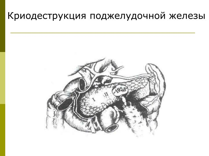 Криодеструкция поджелудочной железы