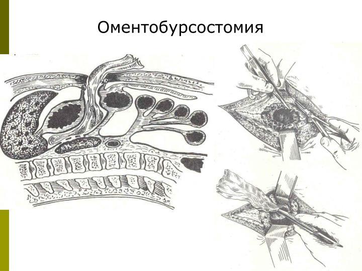 Оментобурсостомия