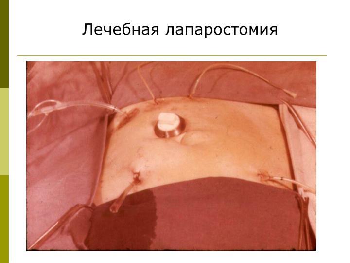 Лечебная лапаростомия
