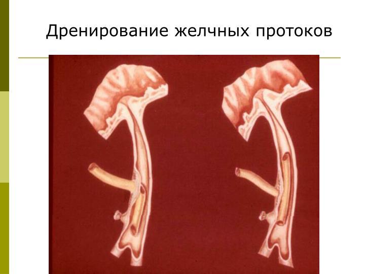 Дренирование желчных протоков