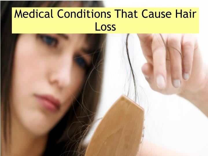 Medical Conditions That Cause Hair Loss