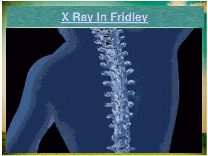 X Ray In Fridley