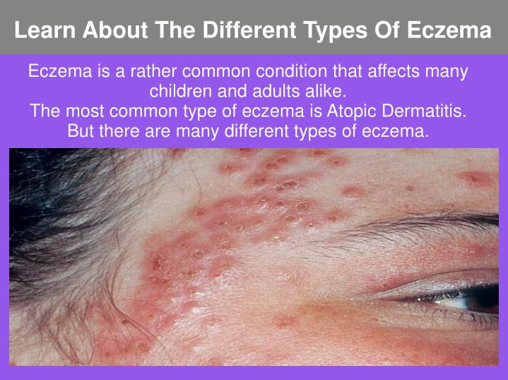 Learn about the different types of eczema