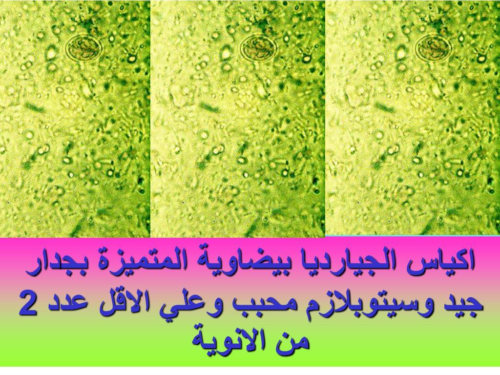PPT - الجيارديا لامبليا Giardia lamblia PowerPoint ...