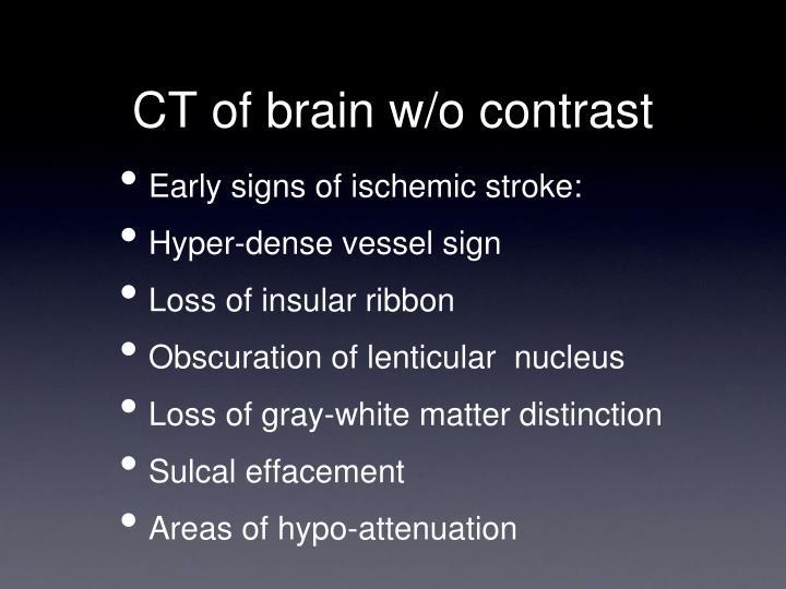 CT of brain w/o contrast
