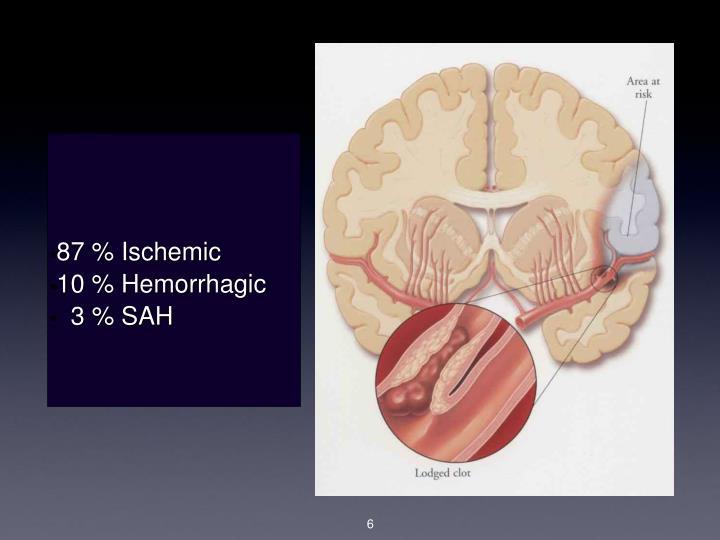 87 % Ischemic