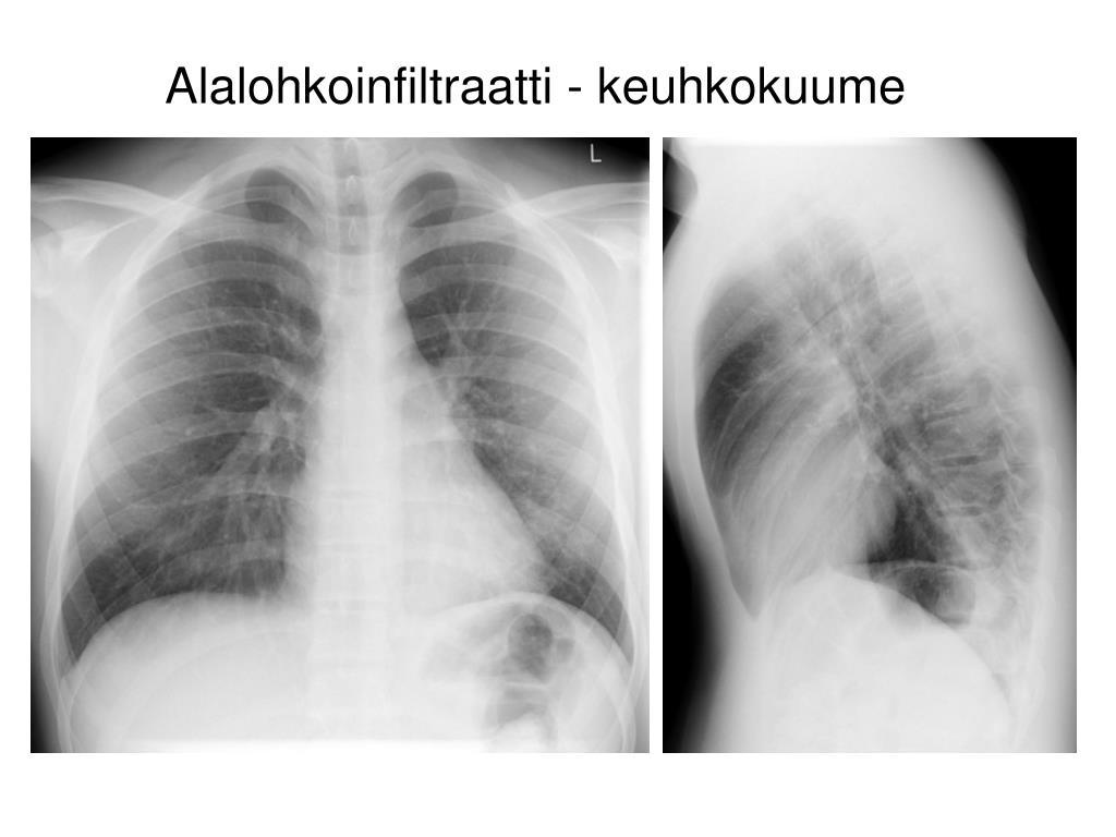 Aspiraatiopneumonia