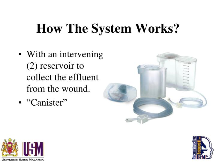 How The System Works?