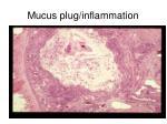 mucus plug inflammation