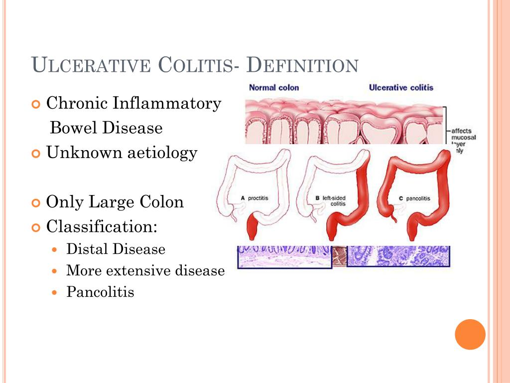 PPT - INFLAMMATORY BOWEL DISEASE PowerPoint Presentation