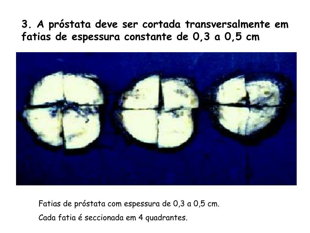prostata 3 cm conversion