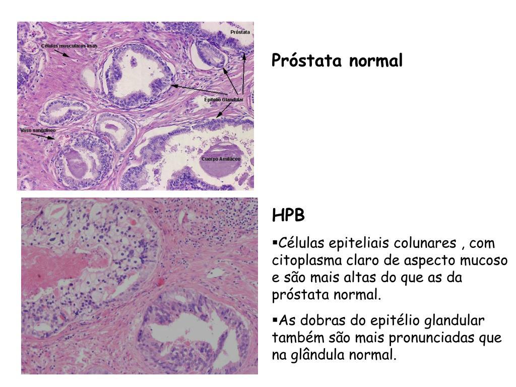 histología de la próstata marcada