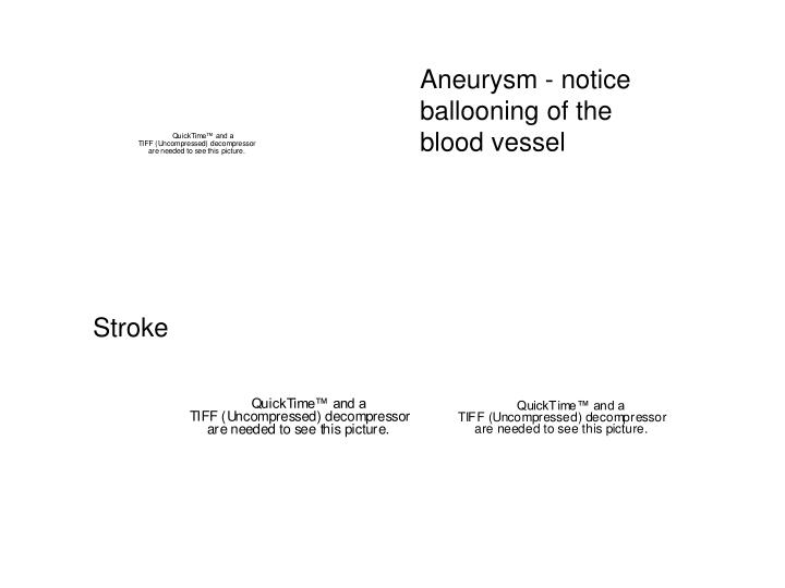 Aneurysm - notice ballooning of the blood vessel