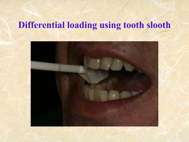 Differential loading using tooth slooth