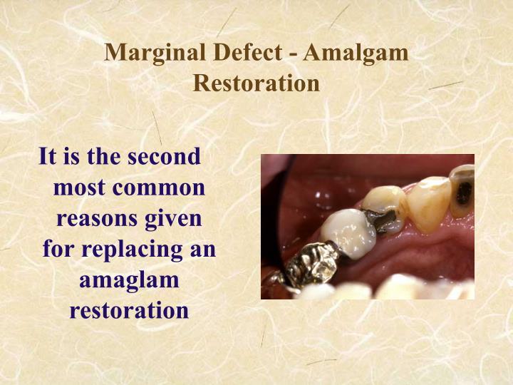 Marginal Defect - Amalgam Restoration