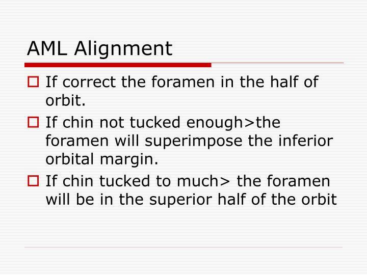 AML Alignment