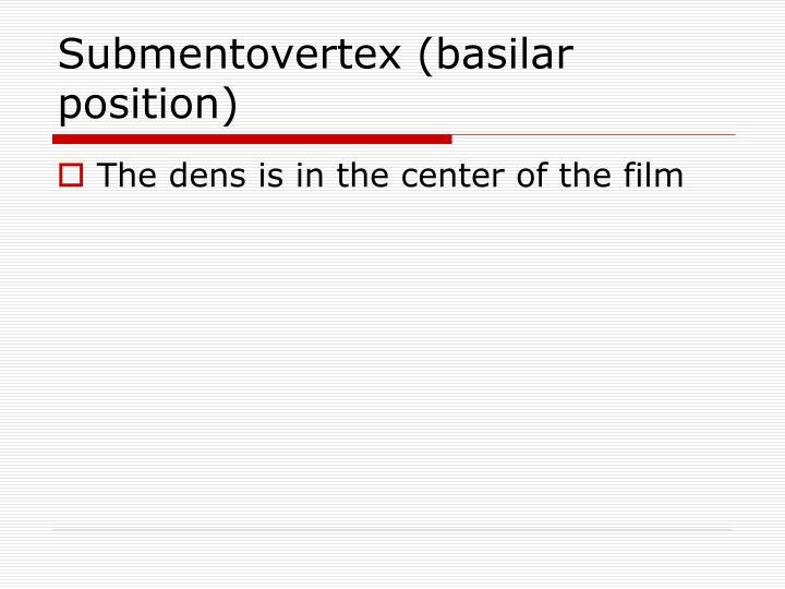 Submentovertex (basilar position)