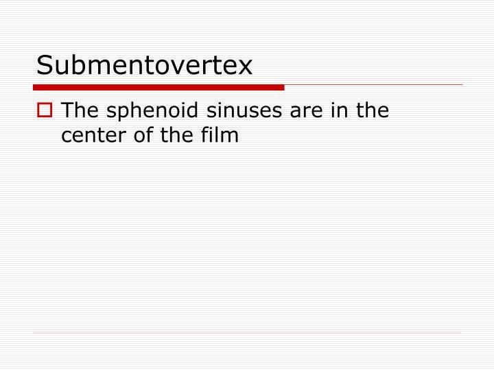 Submentovertex