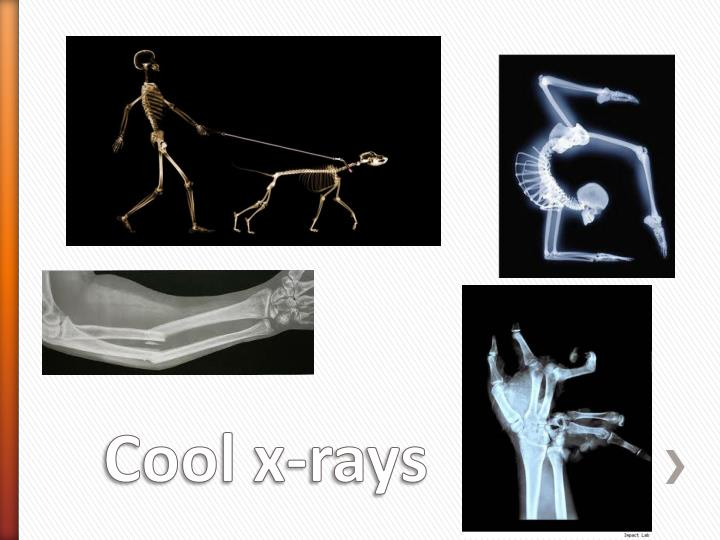 Cool x rays