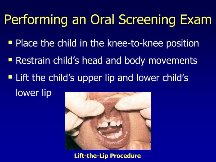 Performing an Oral Screening Exam