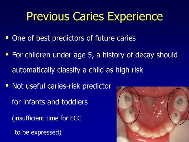 Previous Caries Experience