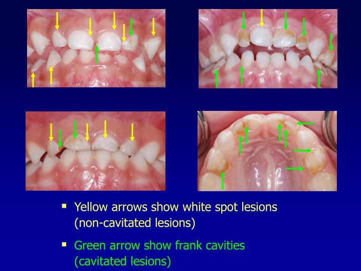 Yellow arrows show white spot lesions