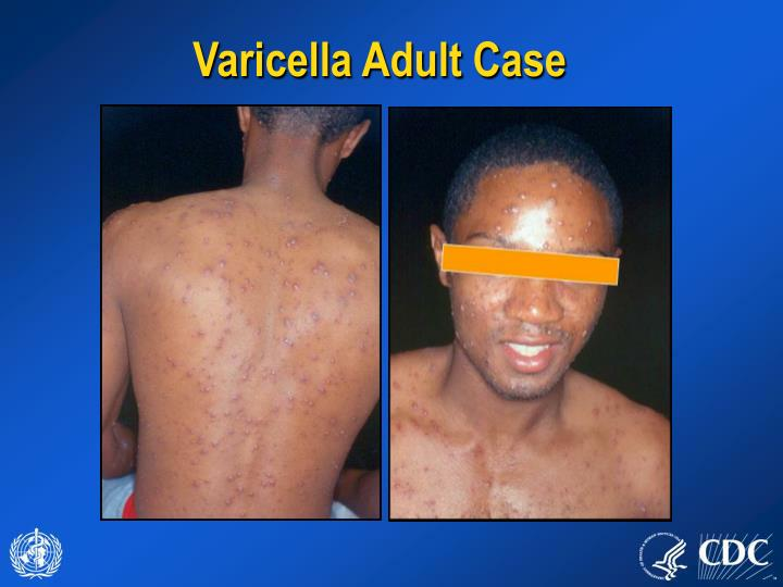 Varicella Adult Case